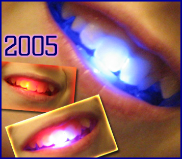 collage showing three different colors of light up smile